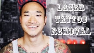 LASER TATTOO REMOVAL | MY EXPERIENCE