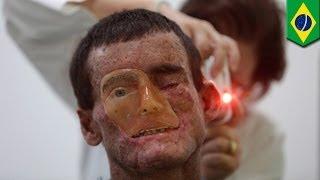 getlinkyoutube.com-مرض جلدي نادر ينتشر في قرية برازيلية