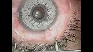 Bright Ocular Iris Implants 2015 Eye Colour Change Procedure