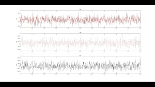getlinkyoutube.com-Matlab Live data acquisition & plotting from Arduino: Vibration sensor