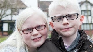 getlinkyoutube.com-Albino Kids Won't Let Their Condition Hold Them Back