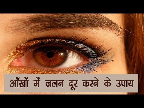 आँखों में जलन दूर करने के उपाय - Aankhon mein jalan dur karne ke upay