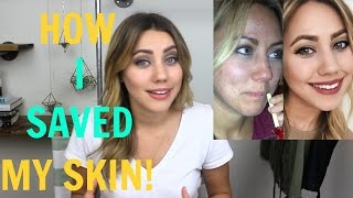 getlinkyoutube.com-How I Beat My Acne | Oil Cleansing Method