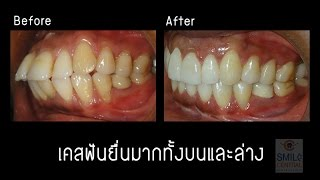 getlinkyoutube.com-จัดฟัน invisalign เคสฟันยื่นมาก เด็นทัลดีไซน์เซ็นเตอร์ พัทยา / สไมล์ เซ็นทรัลเวสเกต บางใหญ่