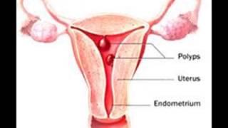 getlinkyoutube.com-Pólipos uterinos