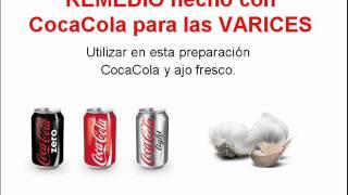 getlinkyoutube.com-REMEDIO hecho con CocaCola para las VARICES