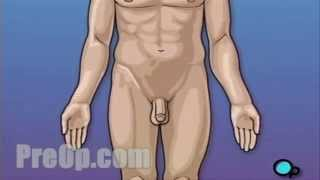 getlinkyoutube.com-Vasectomy (penis) Surgery - PreOp® Patient Education
