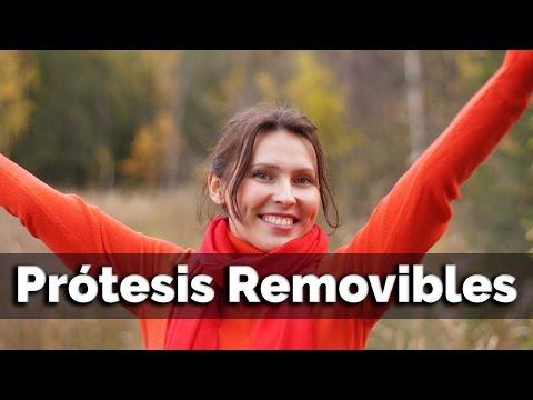 PROTESIS REMOVIBLES SOBRE DIENTES NATURALES