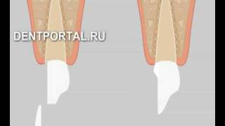 Зубные виниры - стоматология, лечение зубов