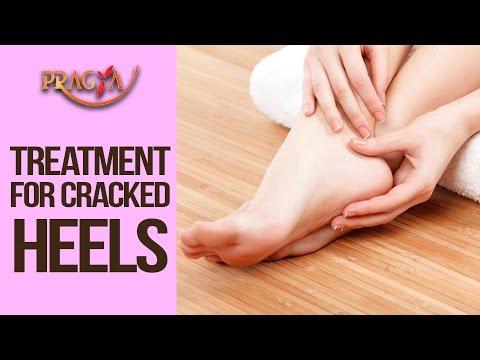 Treatment For Cracked Heels - Shweta (Beauty Expert ) | Aapka Beauty Parlour