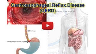 getlinkyoutube.com-✔ GERD, Gastroesophageal reflux disease - Heartburn - MADE EASY
