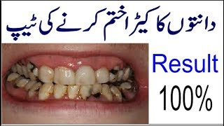 how to get rid of teeth cavity | danto ka kera kase khatam kare | what is cavity.