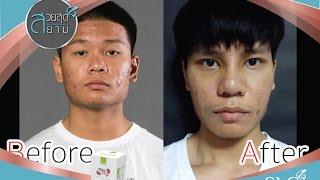 getlinkyoutube.com-สวยสุดสยาม 15 กันยายน 2558 หนุ่มหน้าปุตาปรือเปลี่ยนโฉมเป็นหนุ่มหล่อหน้าหวาน