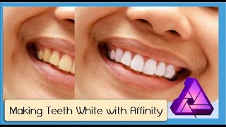 getlinkyoutube.com-How to Whiten Teeth in Affinity Photo