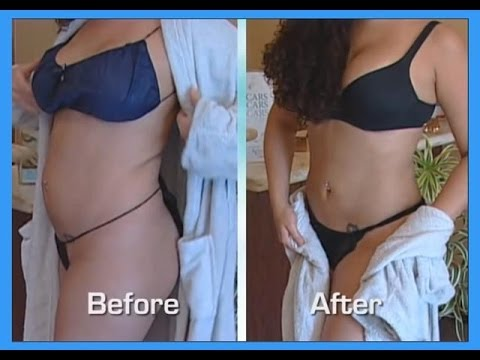 Videos Related To 'abdomen And Waist- Smartlipo-tumescent Li