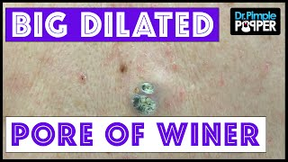 getlinkyoutube.com-Two HUGE Dilated Pores of Winer!!
