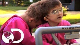 getlinkyoutube.com-Hermanas gemelas siameses - Mi Cuerpo, Mi Desafío l Discovery Channel