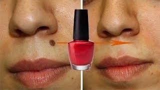 Nail Paint से तिल - मस्से और दाग ऐसे गायब होंगे जैसे कभी थे ही नहीं -100% Working | Remove Moles