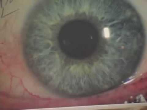 Iridology-What the iris shows
