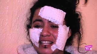 getlinkyoutube.com-الفتاة سعاد ضحية تشرميل مراكش (52 غرزة) / إعتدائين في أقل من شهر واحد