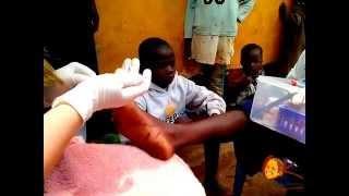 getlinkyoutube.com-Черви Dudu в ножках детей