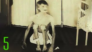 getlinkyoutube.com-5 Nightmare Fuel Photos from Insane Asylums