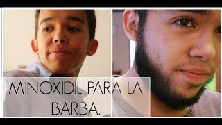 getlinkyoutube.com-CÓMO HACER CRECER LA BARBA - EXPERIENCIA   Juan Daniel Osorio.