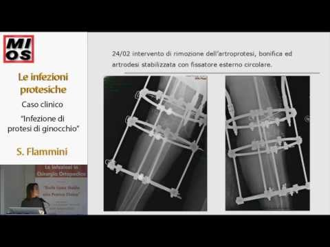 08 - Le infezioni protesiche: Caso clinico Infezioni di protesi di ginocchio