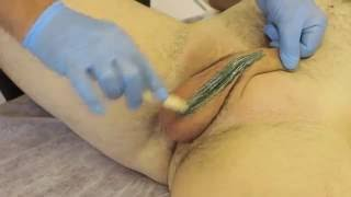 getlinkyoutube.com-Step by Step Male Brazilian and Male Hollywood style Waxing  Full Length Demonstration