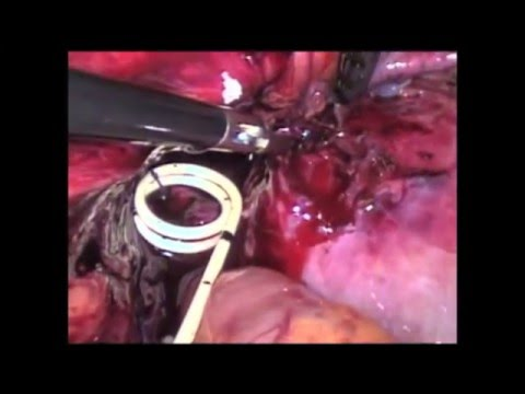 Laparoscopic Intracorporeal Ureteral Tailoring