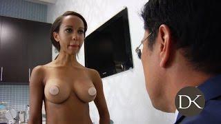 getlinkyoutube.com-Breast Augmentation: Trans-umbilical Approach
