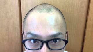 getlinkyoutube.com-発毛日記 3ヶ月目