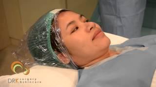 getlinkyoutube.com-คุณตุ๊ก  พัชรี เสริมจมูก  @ DRK Beauty Clinic