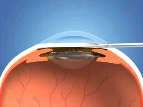 Cataract Surgery -kjGk1qQpg_0