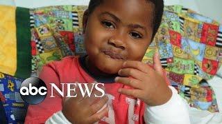 getlinkyoutube.com-8-Year-Old Boy Receives Dual Hand Transplants