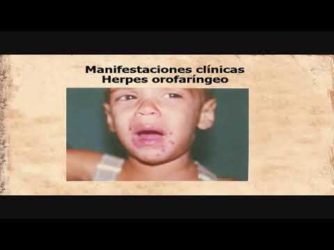 Herpes simple 1 y 2