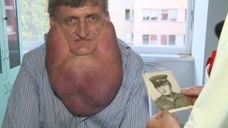 getlinkyoutube.com-Massive Tumor Removed from Man's Face