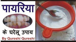 पायरिया का इलाज करने के लिए घरेलू उपाय और नुस्खे ||  Pyria Treatment in Hindi Urdu
