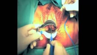 getlinkyoutube.com-Conizacin del cuello uterino para el tratamiento del HPV   GINE3