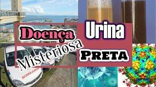 getlinkyoutube.com-🔴Doença da Urina Preta na Bahia - Saiba Mais