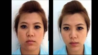 getlinkyoutube.com-[รีวิว]  ภาพการรักษา ร้อยไหมยกกระชับเกาหลี