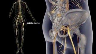 getlinkyoutube.com-What is Sciatic Nerve Causes? Sciatic Pain Relief Treatment | Sciatic Exercises
