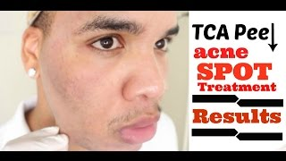 getlinkyoutube.com-25% TCA Chemical Peel: Spot Treatment Follow-Up (Results) HD