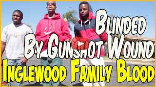 getlinkyoutube.com-Munchie B from Inglewood Family Bloods lost vision after getting shot in head
