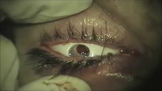 getlinkyoutube.com-Evisceration eye surgery by Prof.Dr.Ahmed Tawfik