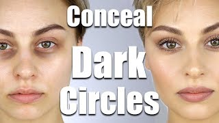 How-To-Conceal-Dark-Circles-Under-Eyes-Alexandra-Anele width=