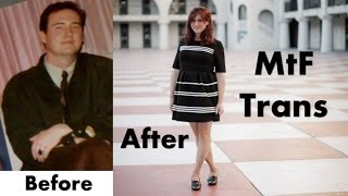 getlinkyoutube.com-Male to Female Transgender Transition - 11 years HRT - MtF Timeline - Dramatic Changes