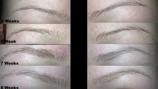 getlinkyoutube.com-How To Quickly Grow Out Skinny Brows
