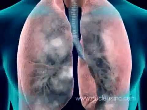 Anti-smoking Ad_ Smoking Causes  Emphysema, Lung Cancer -lJkkNcOO5ng