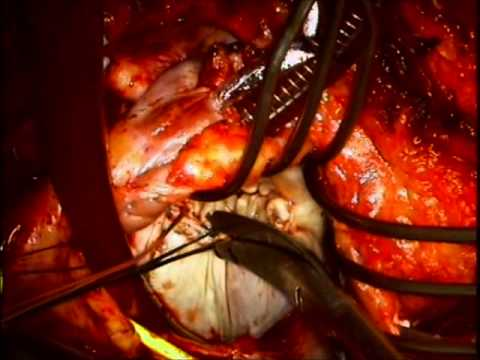 Redo Mitral Valve Repair